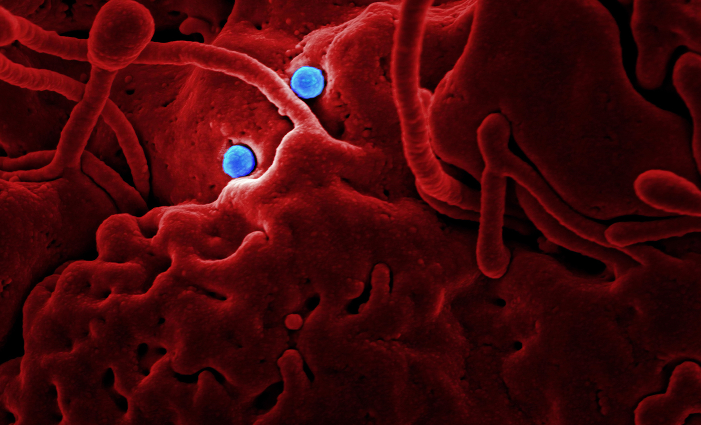 Removing the viruses, which are non-living from the bloodstream will cure the diseases.