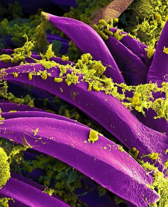 The bubonic plague is back in China.